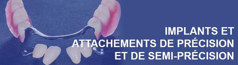 Implants et attachements de précision | Laboratoire dentaire Gati