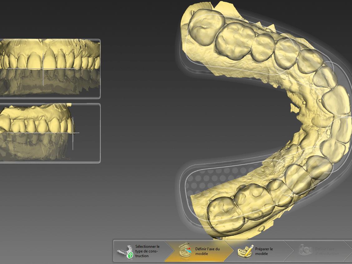 Plaques occlusales usinées | Laboratoire dentaire Gati inc.