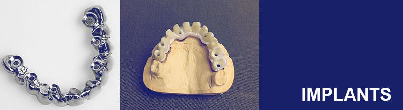 Implants | Laboratoire dentaire Gati