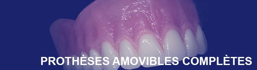 Prothèse complètes amovibles | Laboratoire dentaire Gati