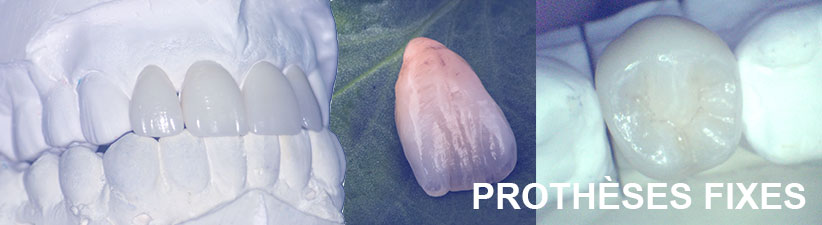 Prothèses fixes | Laboratoire dentaire Gati